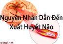 Nguyên Nhân Dẫn Đến Xuất Huyết Não